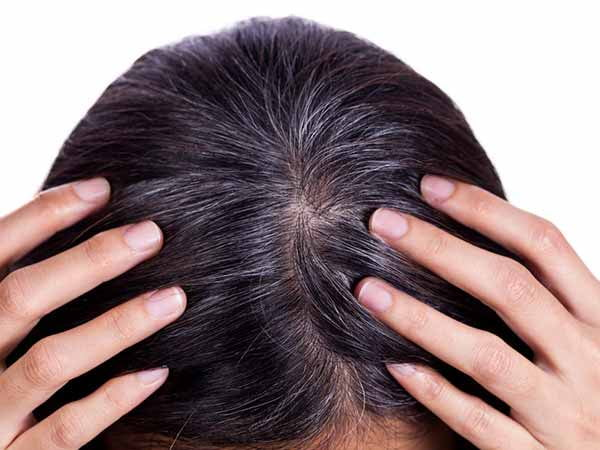 White Hair: Problems Excellent Ayurvedic Remedy