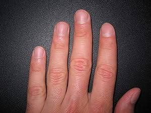 Fingers: for tells future heart diseases attacks