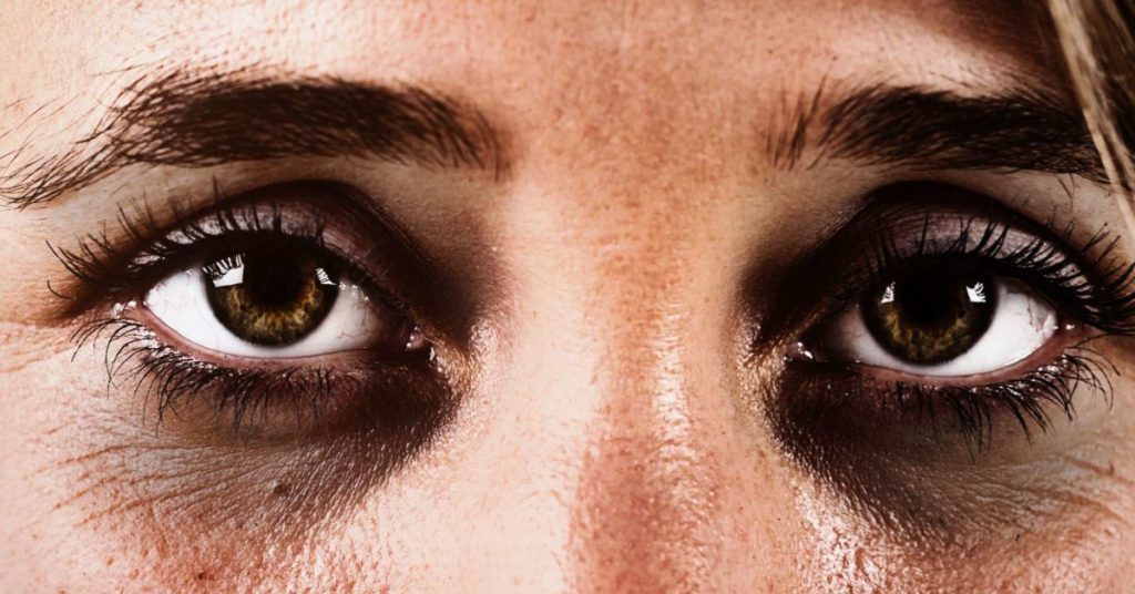 home remedies for removing Dark Circles