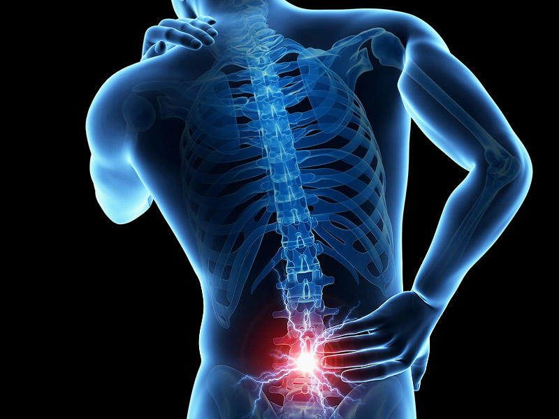 Disc Problems: home remedies excellent results