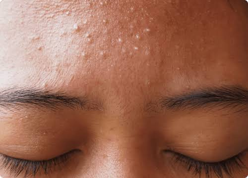 Home remedies for White Heads: