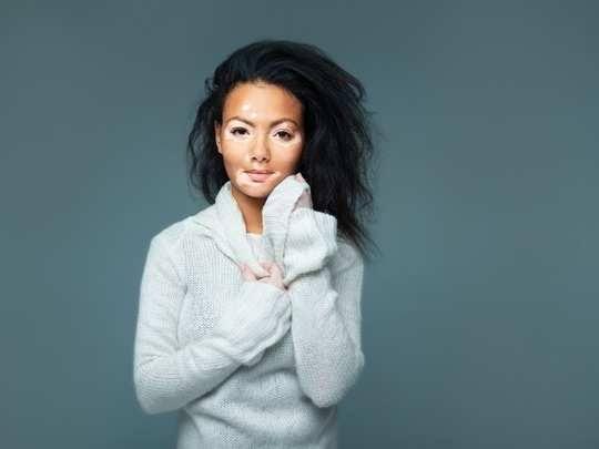 Ayurvedic Remedie For Vitiligo: Skin Problems
